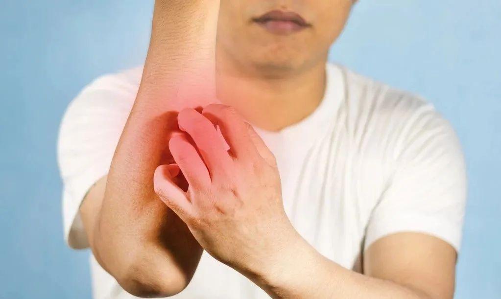得了皮肤病奇痒难耐?还不敢手挠?皮肤科专家教你超简单止痒妙招