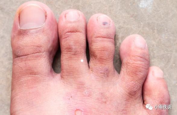治脚气什么药效果最好没有副作用