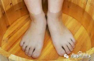 冬天脚出汗是肾虚吗?
